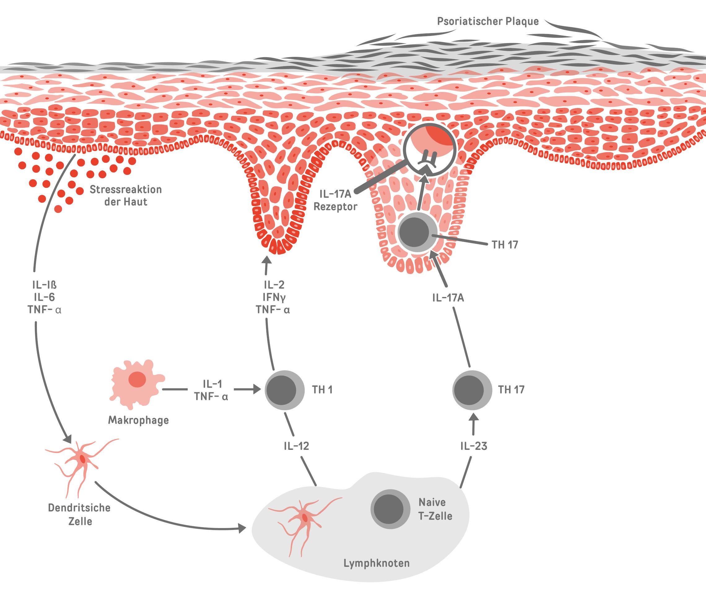 biologika psoriasis